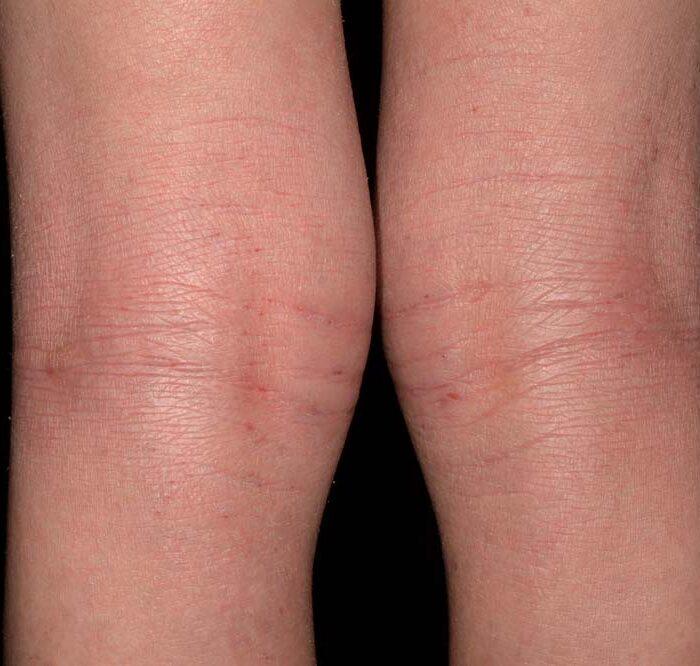 Neurodermitis behandeln wir in unserer Hautarztpraxis in München.