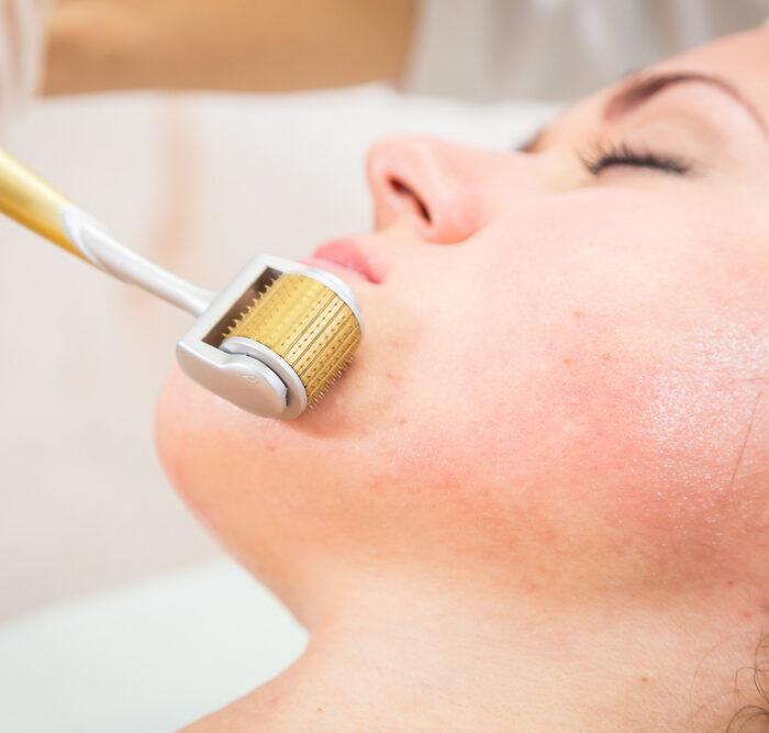 Hautarzt München Medical Needling
