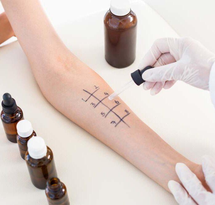 In unserer Hautarzt Praxis in München Neuhausen Nymphenburg führen wir umfangreiche Allergietestungen durch,