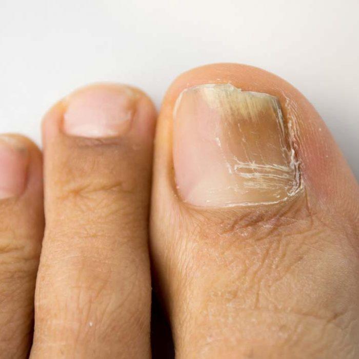 Der Nagelpilz ist eine Pilzinfektion der Nägel durch verschiedene Pilzarten. Die Behandlung ist häufig langwierig.