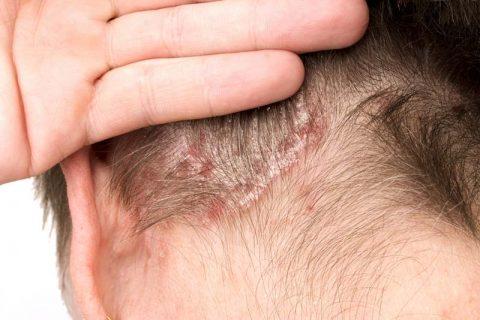 Patienten für Studie zur Kopfhaut-Psoriasis gesucht
