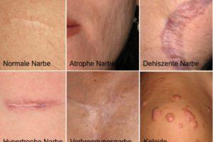 Behandlung verschiedener Narben