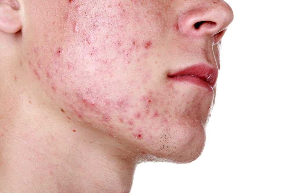 Bei Akne und Rosazea handelt es sich um die wahrscheinlich häufigsten Hauterkrankungen überhaupt. Wir behandeln diese Erkrankung in unserer Hautarzt Praxis in München.