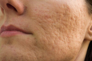 Hautoberfläche mit atrophen Narben